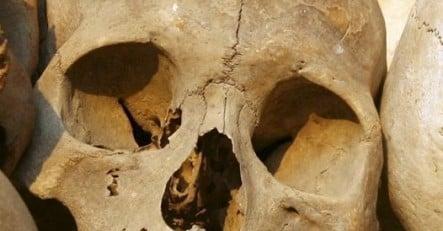 Berliner Charité to return Aborigine skulls