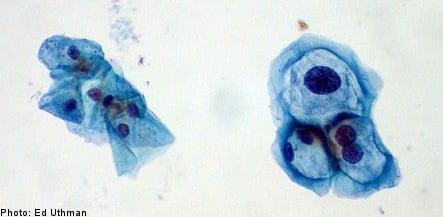 Sweden to offer all girls free cervical cancer vaccines