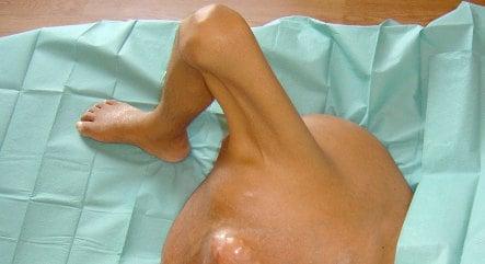Berlin doctors remove 18-kilo bone tumour