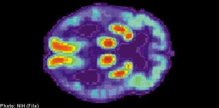 Swedish researchers develop Alzheimer's test