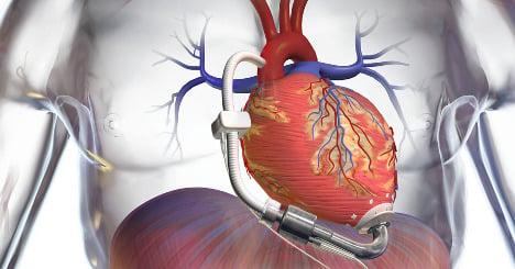 Doctors implant smallest artificial heart pump ever