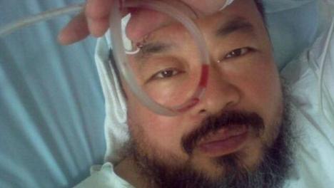 Chinese artist gets emergency brain surgery in Munich