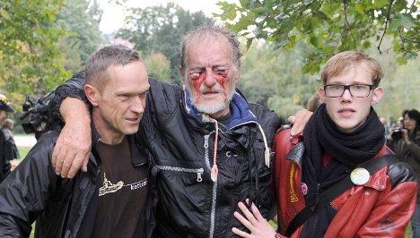Injured Stuttgart 21 protestor could stay blind