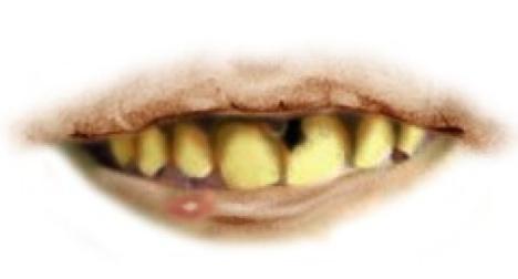 Dentist identifies robber by his teeth
