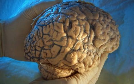 Scientists induce temporary Tourette's