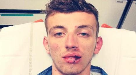 Gay man beaten in latest 'homophobic' attack