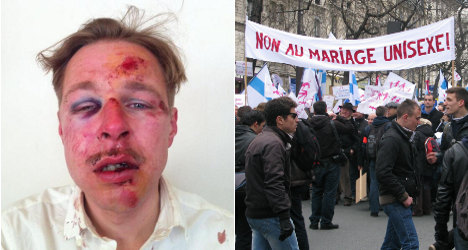 Beating reveals 'the face of homophobia' in France
