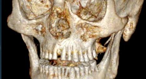 'Ötzi the Iceman had bad teeth': Zurich scientists
