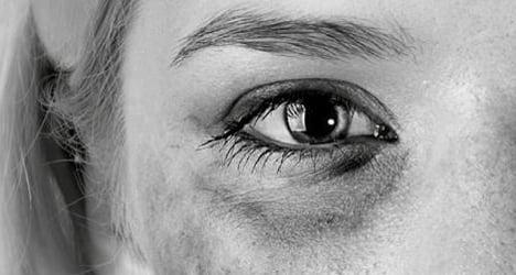 'Violence against women is a cultural problem'