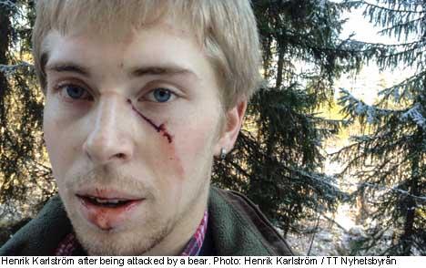 Swedish goalkeeper injured in bear attack