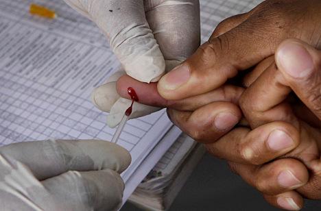 Swedes warn of new aggressive HIV strain