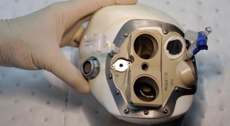 French artificial heart trials go on despite death