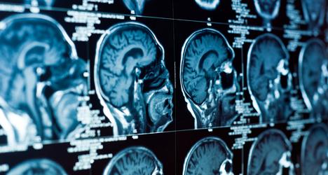 Italian scientists map brain to diagnose ALS