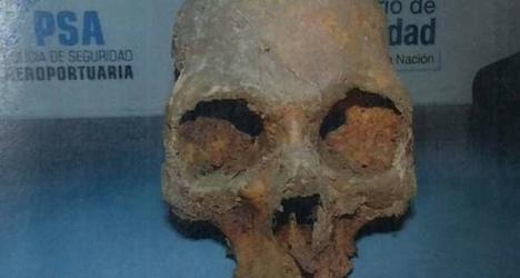 Swiss teen nabbed with stolen skull in suitcase
