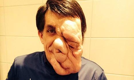 Swedish tumour man wants to inspire world