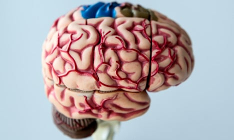 Long-term damage seen from brain injuries: Swedish study